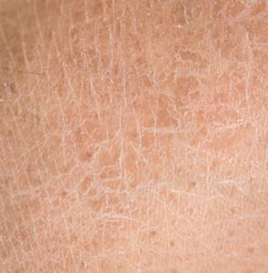 sucha skóra na całym ciele