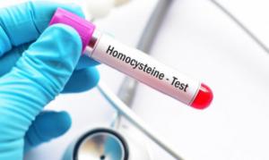 podwyższona homocysteina, wysoki poziom homocysteiny